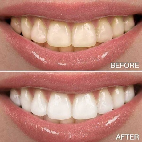 SAVE £15 - Introducing teeth whitening!