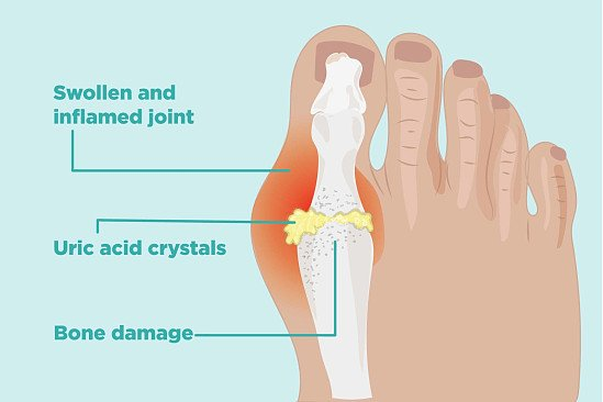 Painful Debilitating Gout in Your Joints?