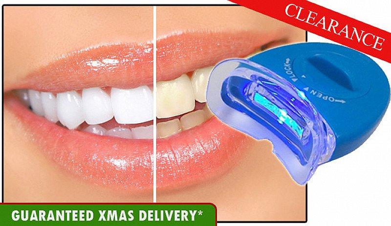 Fast Dental Teeth Whitening System £6.89