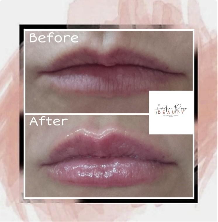 Lip fillers - £70